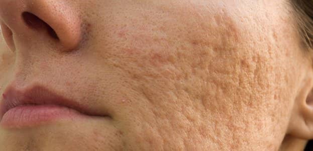 Can Dermal Fillers Help With Deep Pitted Acne Scars Laseraway